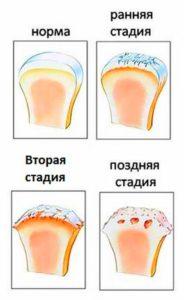Изображение - Как выглядит коксартроз тазобедренного сустава stepeni-artroza-184x300