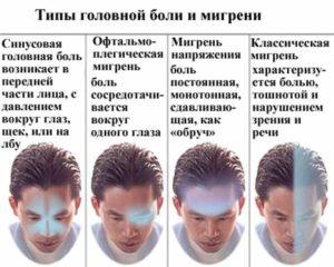Боль от мигрени