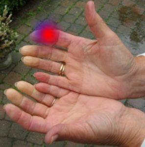 Проблемы с указательным пальцем