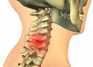 Защемление диска в шее
