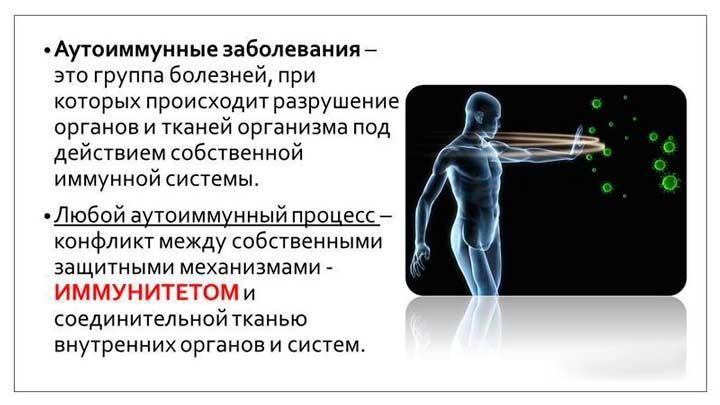 Аутоимунные заболевания - причина спондилоартроза