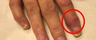 Кисть руки с полиартритом