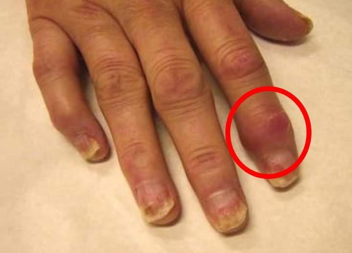 Полиартроз причины симптомы диагностика и лечение
