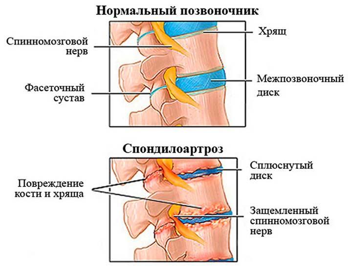 Описание спондилоартроза позвоночника