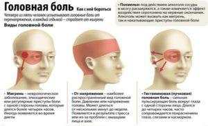 Где болит при мигрени