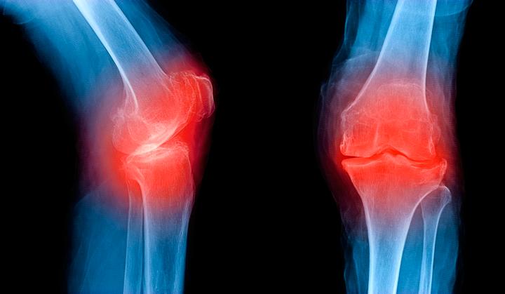 Терафлекс от остеоартроза