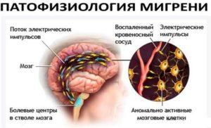 Что творится при мигрени