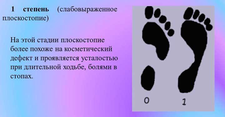 Первая степень плоскостопия