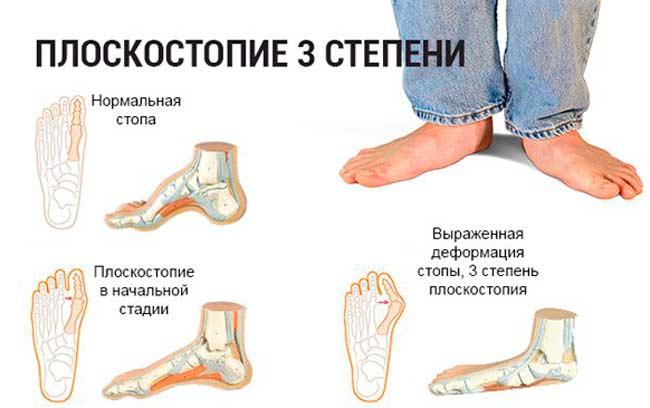 Симптомы плоскостопия третьей степени