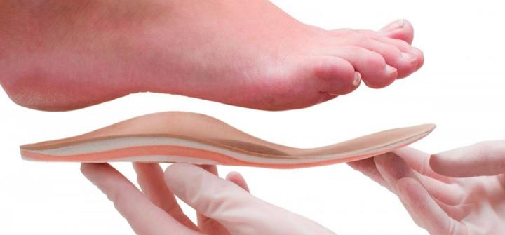 Что происходит при плоскостопии