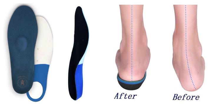 На что способны ортопедические стельки