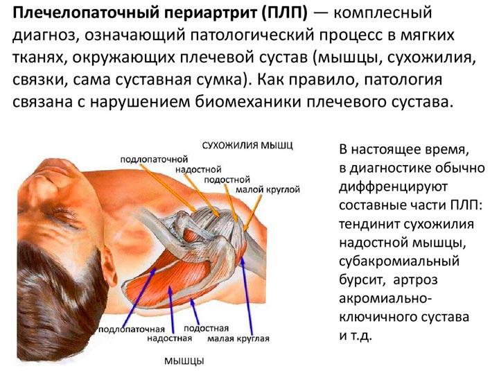 Характеристика плечелопаточного периартрита