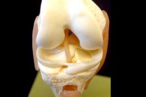 3Д модель коленного сустава