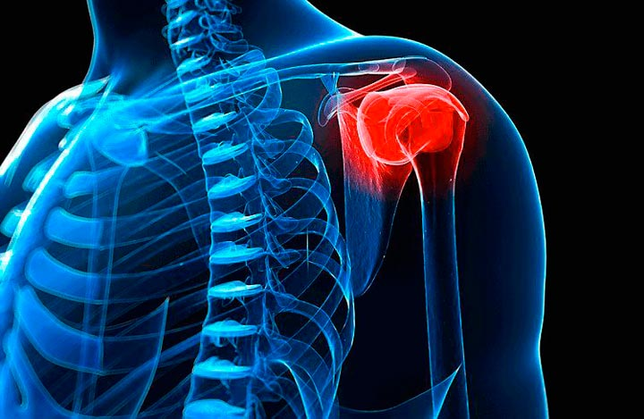 Плечелопаточный периартрит - симптомы и признаки появления. Лечение народными средствами и гимнастикой