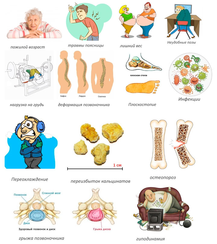 Причины появления грудного спондилеза