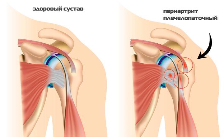 Схема плечелопаточного переатрита