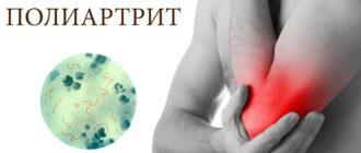 Заболевание суставов