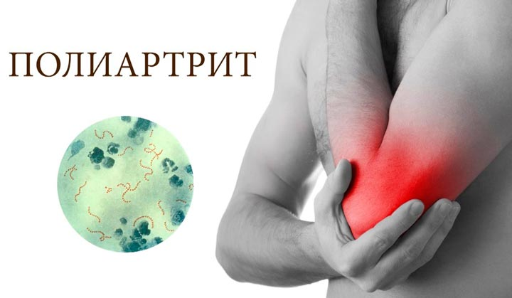 Чем лечат полиартрит традиционное и народное лечение