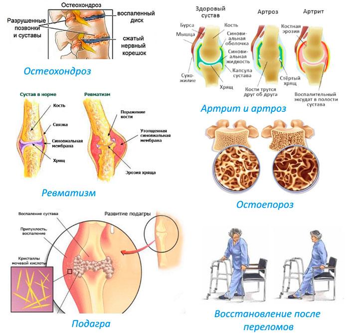 Применение хондромарина