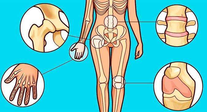 По количеству пораженных суставов Артрит классифицируют